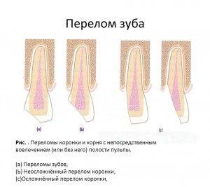 Виды перелома