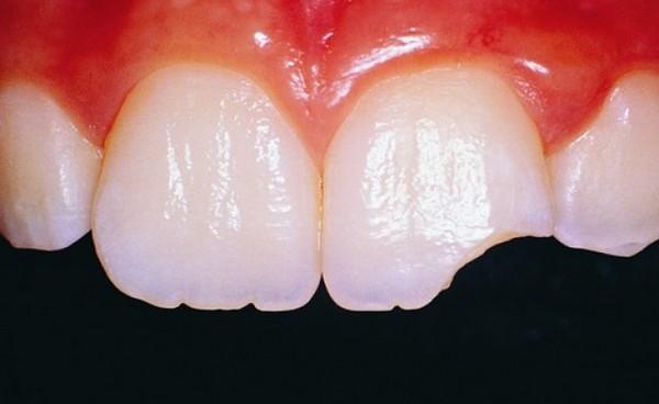 Зубы крошатся