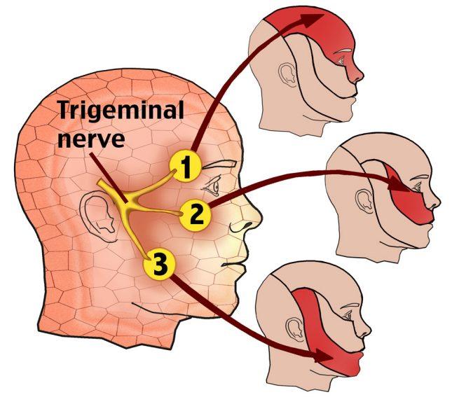 Троичный нерв