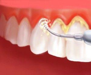 Больно ли удалять зубные камни