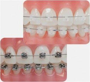 понятие ортодонтологии