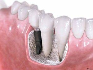 Что из себя представляет имплантация зубов