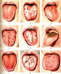 Десквамативный глоссит: причины и лечение