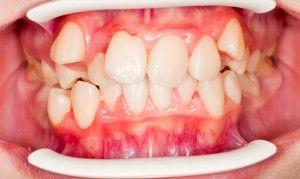 Как выглядит дистопированный зуб