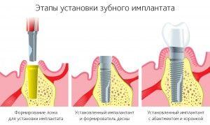 Этапы моментальной имплантации