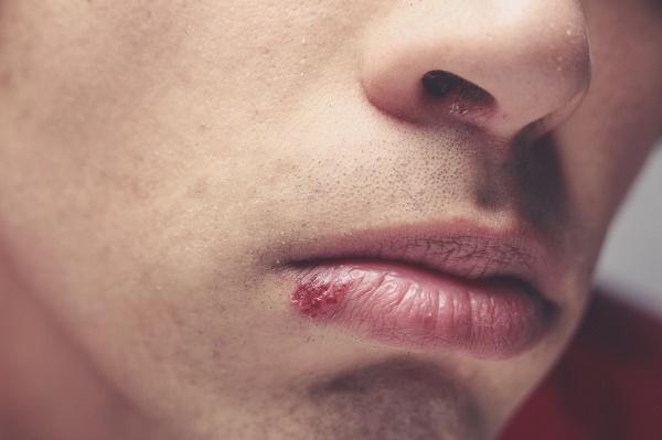 Герпес во рту: как лечить на небе, десне и слизистой рта у ребенка и взрослых