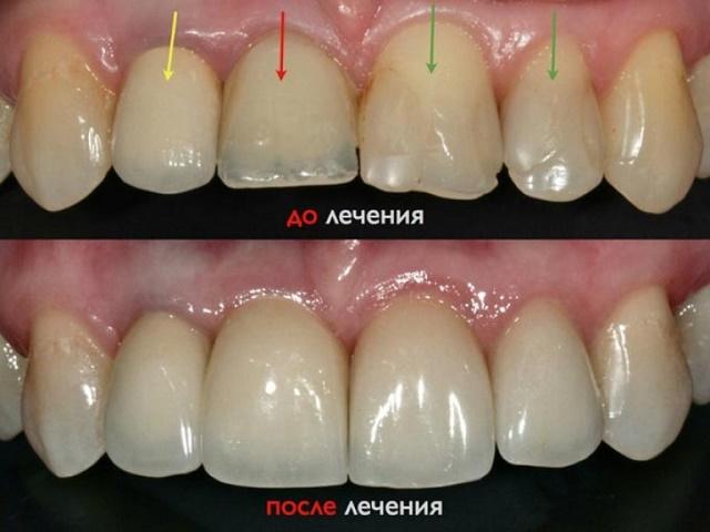 гипоплазия эмали до и после