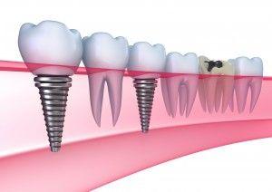 Сущность имплантологии зубов