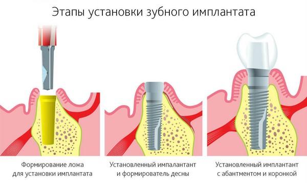 этапы имплантации зубов