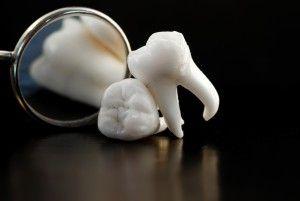 Сколько каналов у зуба мудрости