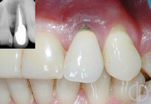Костные ткани зубов