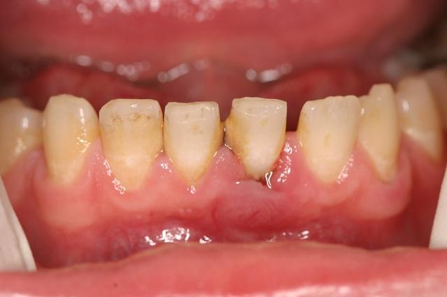 кровь из зубов