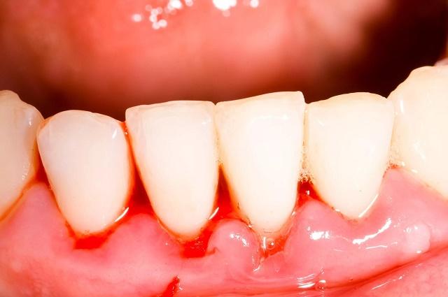 кровь на зубах