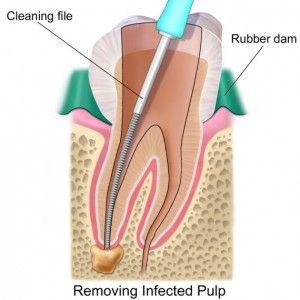 Лечение абсцесса зуба