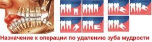 Раскрошился или сгнил зуб мудрости: кариес и пульпит