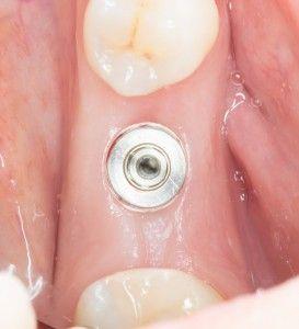 Преимущества моментальной имплантации
