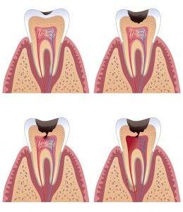 Последствия воспаления зубного нерва