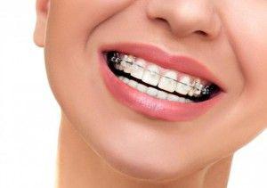 Причины неровной улыбки