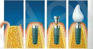 Особенности процедуры имплантации