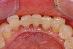 шины на зубном ряду