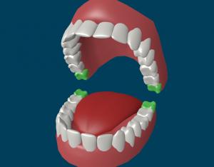 Сколько зубов мудрости должно быть