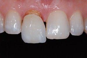 Специфика обточки зубов