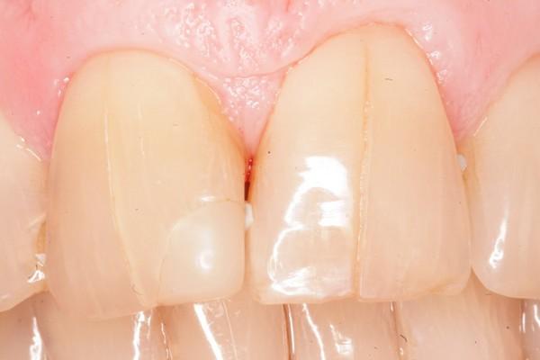 трещины на зубах