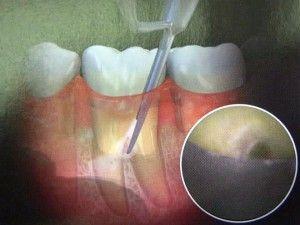 Как восстановить структуру костной ткани челюсти