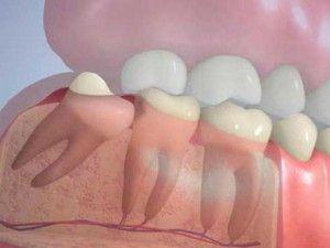 Для чего нужны зубы мудрости