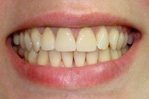 желтые зубы у детей