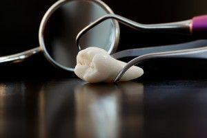 Взгляд стоматологов на зубы мудрости