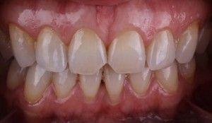 зубы желтые от природы